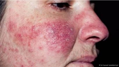 infección de piel muerta