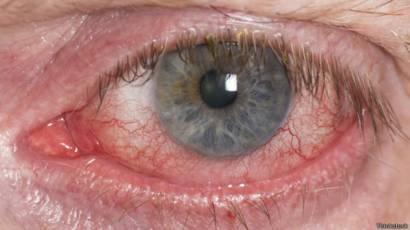 infección peligrosa por hongos en los ojos