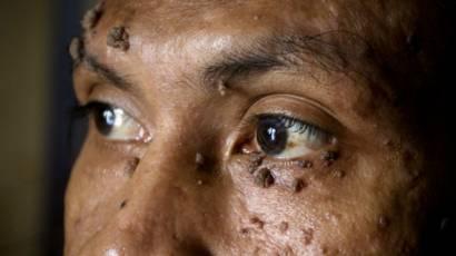 verrugas en la cara de los hombres