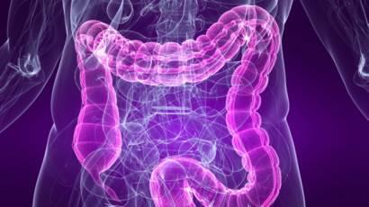 que medicamento debo tomar para el colon inflamado