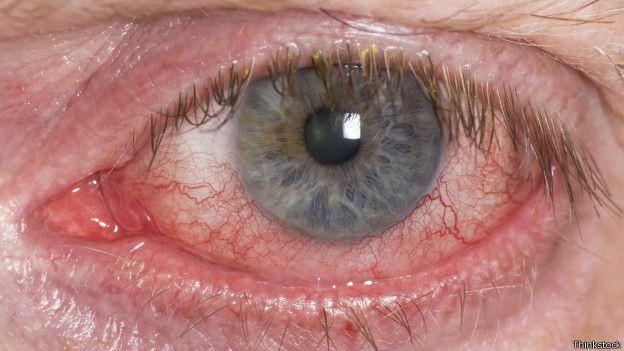 59547ba901 Trucos para que tus lentes de contacto sean más seguros - BBC News Mundo