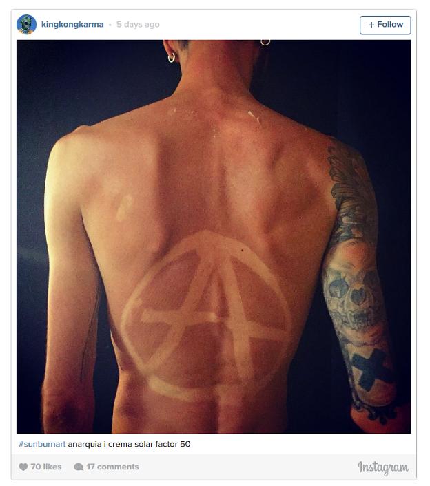 La Peligrosa Moda De Los Tatuajes Solares Que Alarma A Los