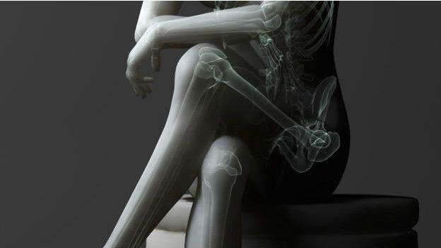 Una radiografía de una persona con las piernas cruzadas