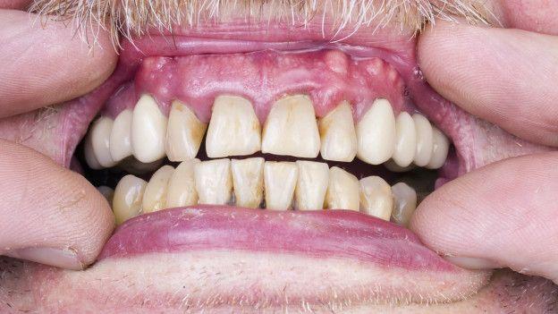 Consejos para blanquear los dientes rapido