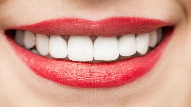 Los blancos casa tener en como dientes