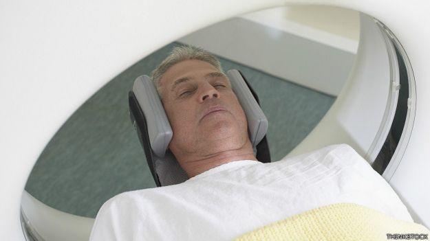 Escáner IRM