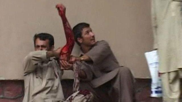 Раненый в Кабуле