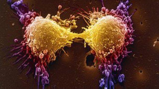 دراسة: اختبار مستوى خطورة سرطان البروستاتا قد يجنب التدخل الجراحي