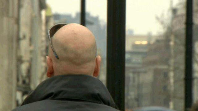 Cientistas criam cabelo em laboratório e se aproximam da cura da calvície