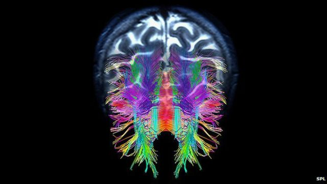 Cómo armar un cerebro