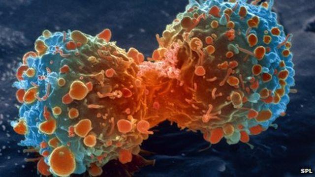 مرض السرطان يكلف دول الاتحاد الأوروبي مليارات اليورو