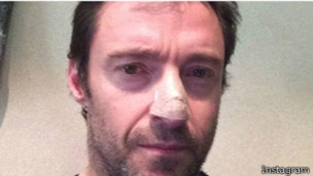 El actor Hugh Jackman revela que tiene cáncer de piel