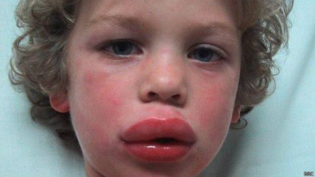 Prueban con éxito nuevo tratamiento para la alergia al maní