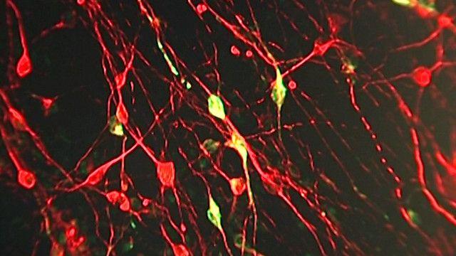 صورة توضيحية لخلايا في المخ