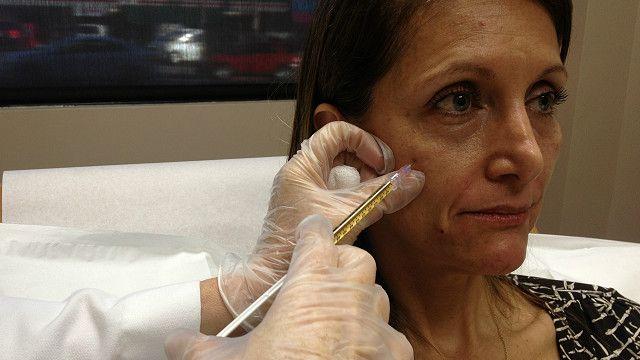 Paciente sometiéndose al tratamiento del vampiro
