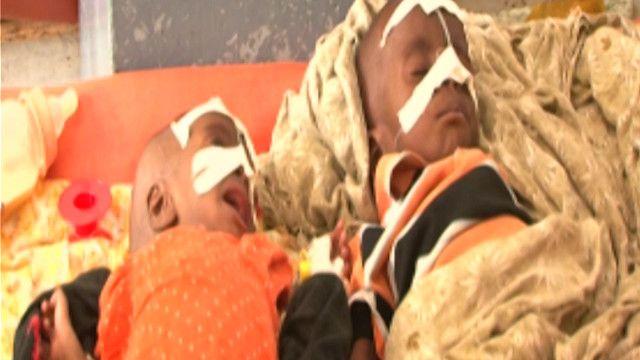 اطفال صوماليون