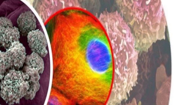 صورة لخلاياي سرطانية