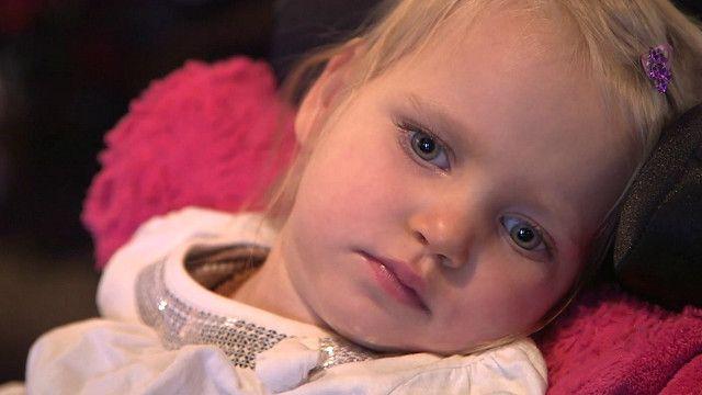 Niña con epilepsia