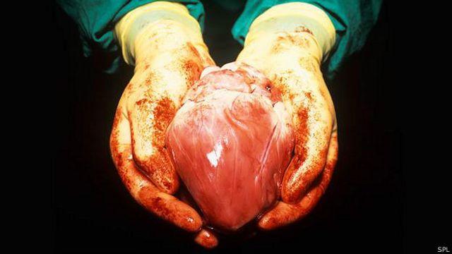 ¿Cómo se sentiría con un corazón de cerdo?