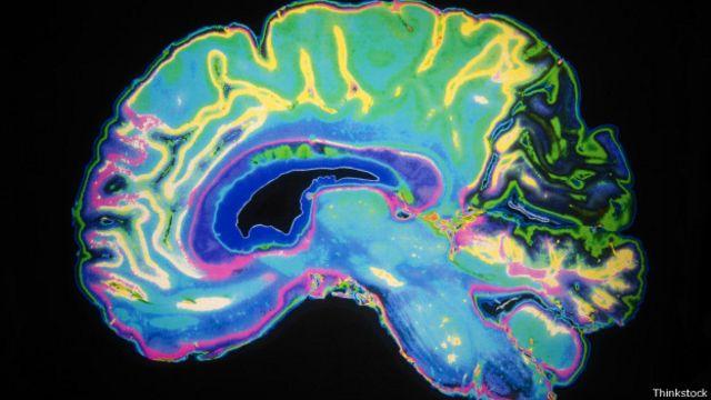 ¿De izquierda o de derecha? Un escáner de su cerebro puede tener la respuesta