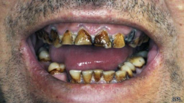"""الليزر """"قد يجنب"""" المرضى الحاجة لعلاج جذور الأسنان"""