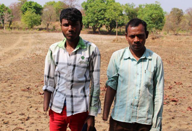 Los trabajadores a quienes amputan por negarse a ser esclavos en India
