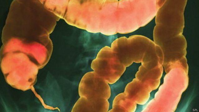 Crean píldora de excremento congelado para tratar infecciones intestinales
