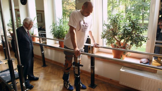 El paralítico que volvió a caminar tras revolucionario trasplante