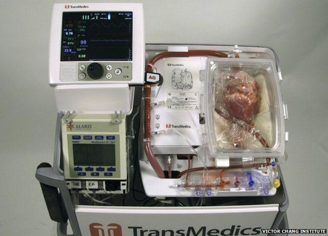 Realizan exitosos trasplantes con corazones que habían dejado de latir