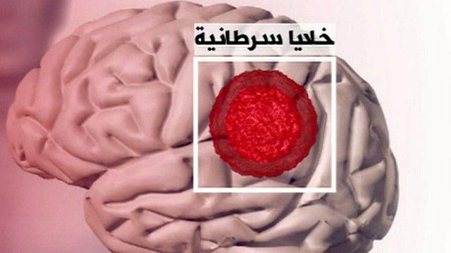 صورة توضيحية للدماغ