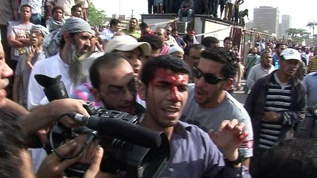 صحفي مصري مصاب بجبينه