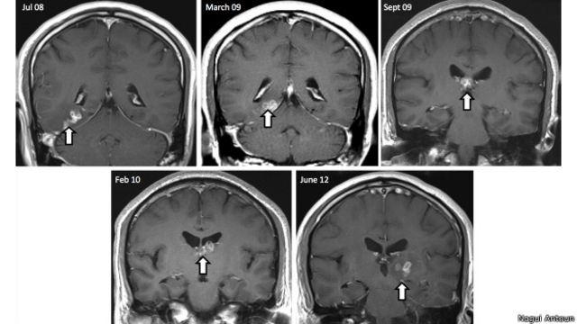 Homem vai ao médico com dor de cabeça e descobre parasita raro no cérebro