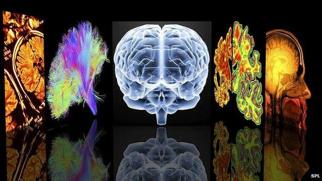 Identifican el punto débil del cerebro frente a la demencia