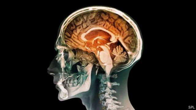 هل يمكن أن تعيش حياة طبيعية بنصف دماغ؟