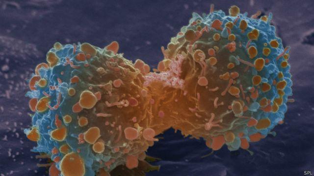 研究:大多數癌症的發生是因為「運氣不好」