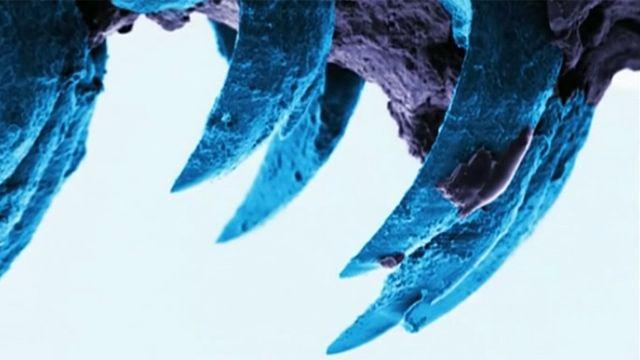 Зубы морской улитки