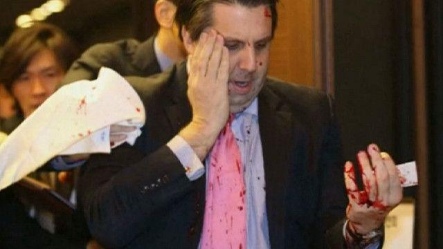 Марк Липперт после нападения