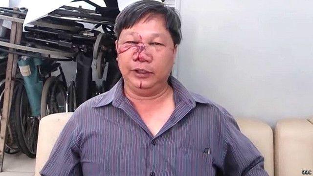 Ông Đinh Quang Tuyến