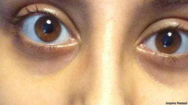 'Um parasita estava comendo meu olho'