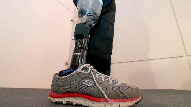 कृत्रिम अंग, पैर, नकली पैर, ऑस्ट्रिया