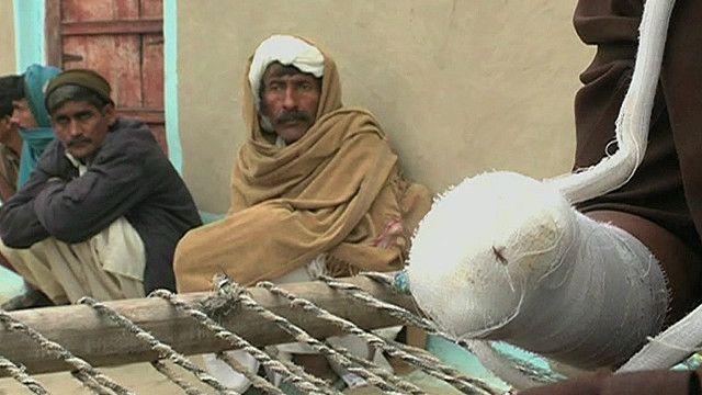 Joven paquistaní que se cortó su mano derecha