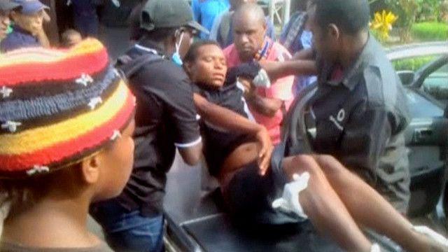 Раненый участник акции протеста