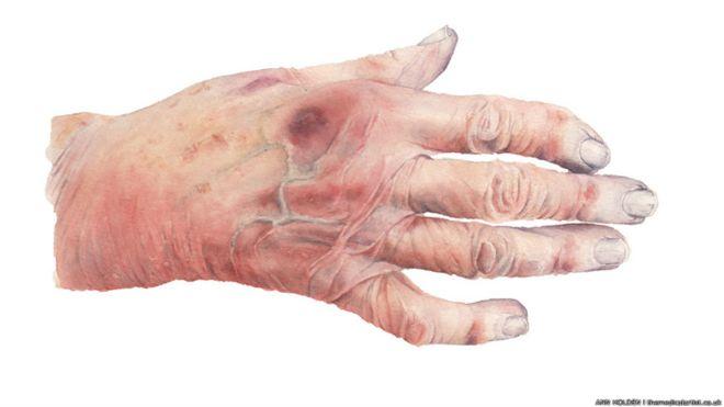 Anatomía del artista médico, figura indispensable de la ciencia ...