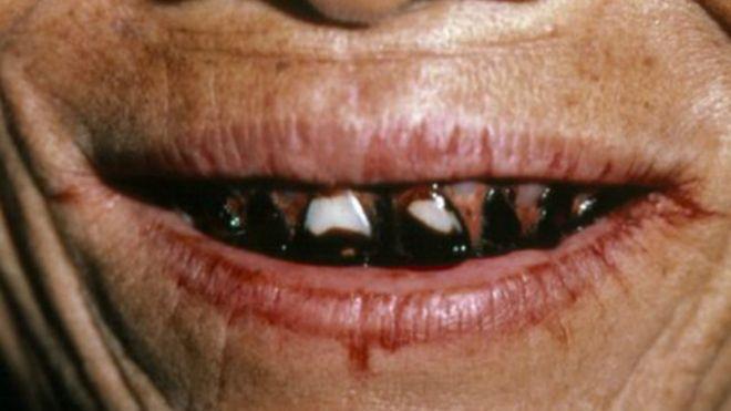 Efectos de mascar nuez de betel
