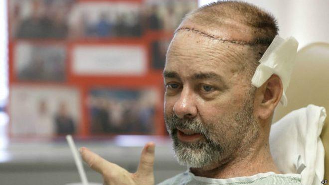 estadounidense, trasplante, triple, craneo, cuero cabelludo