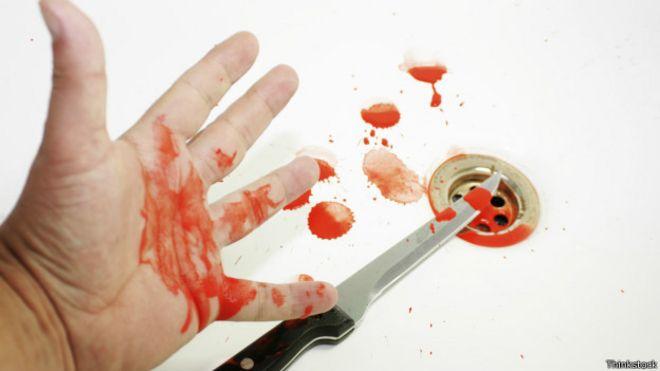 Como ayudar a cicatrizar una herida mas rapido