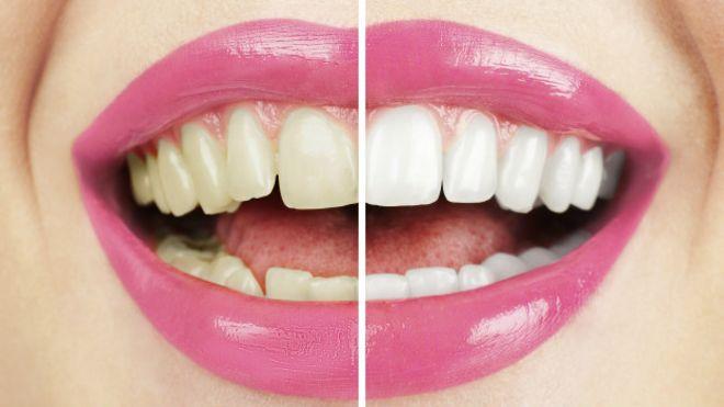Remedios caseros para blanquear los dientes de los ninos