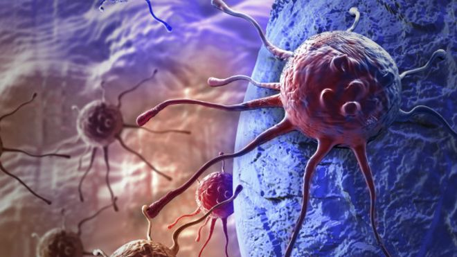 10 alimentos que provocan cancer