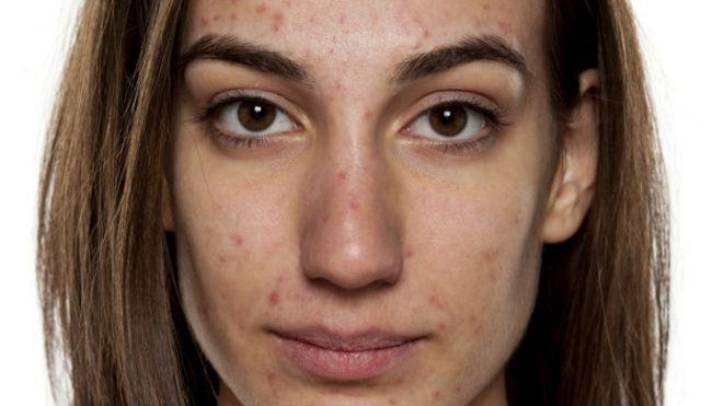 que es bueno para el acne severo
