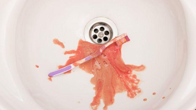 Sangrado de encias al cepillar los dientes
